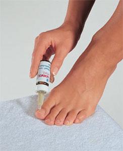 Вросший ноготь - причины, профилактика и лечение