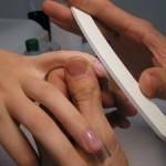 Причины появления бороздок на ногтях