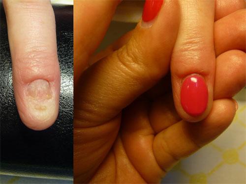 Чем восстановить ногти на ногах после грибка